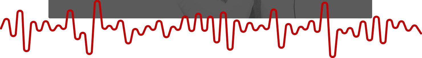 zigzag-line